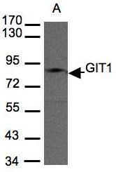 NBP1-31447 - GIT1
