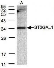 NBP1-31449 - ST3GAL1 / SIAT4