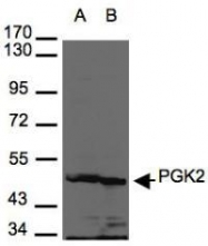 NBP1-31452 - Phosphoglycerate kinase 2 (PGK2)