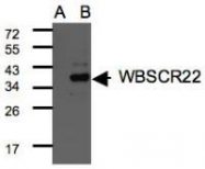 NBP1-31454 - WBSCR22