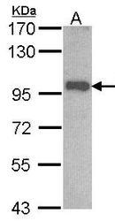 NBP1-31456 - OSBPL6