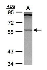 NBP1-31464 - PCCB