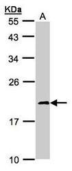 NBP1-31465 - NDUFS4