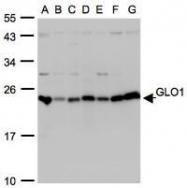 NBP1-31466 - Glyoxalase I / GLO1