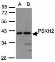 NBP1-31467 - PSKH2