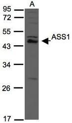 NBP1-31468 - ASS1