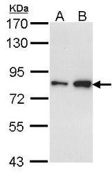 NBP1-31472 - CTDP1