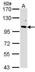 NBP1-31473 - FBXO43