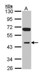 NBP1-31475 - INPP1 / IPPase