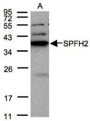 NBP1-31479 - Erlin-2