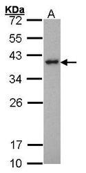 NBP1-31484 - SPI1 / PU.1