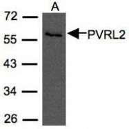 NBP1-31486 - CD112 / Nectin 2