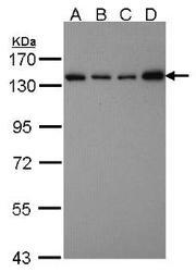 NBP1-31487 - SART3 / TIP110