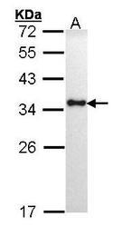 NBP1-31512 - HLA class II DR alpha / HLA-DRA