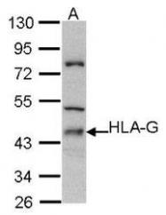 NBP1-31516 - HLA class I  alpha G / HLA-G