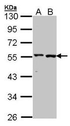 NBP1-31525 - Alanine aminotransferase 1 (ALT1)