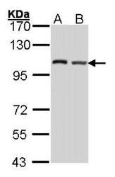 NBP1-31527 - eIF4G2 / DAP5