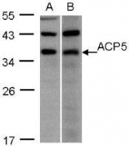 NBP1-31535 - ACP5 / TR-AP