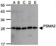 NBP1-31542 - PSMA2