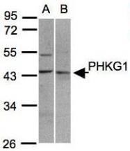 NBP1-31548 - PHKG1 / PHKG