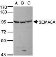 NBP1-31551 - SEMA6A