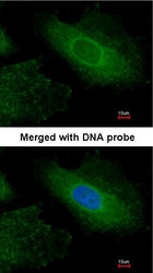 NBP1-31553 - Radixin / RDX