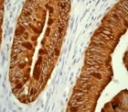 NB110-59940 - Cytokeratin 20