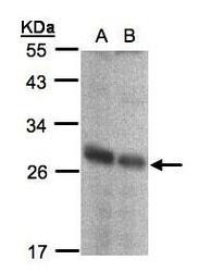 NBP1-31563 - NQO2