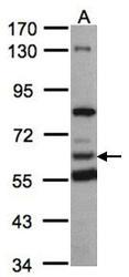 NBP1-31571 - HACL1 / PHYH2