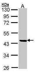 NBP1-31581 - SERPINB1