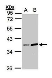 NBP1-31592 - Prostasin / PRSS8