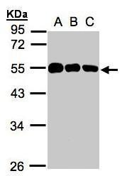 NBP1-31597 - Calsequestrin-1