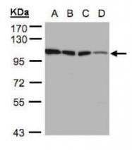 NBP1-31600 - Hexokinase-1