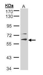 NBP1-31602 - STK33