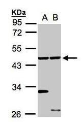 NBP1-31606 - Ethanolamine kinase 1