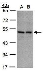 NBP1-31609 - CD158e / KIR3DL1