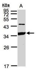 NBP1-31612 - CD102 / ICAM2