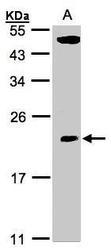 NBP1-31618 - TPRKB