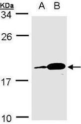 NBP1-31619 - PACAP