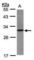 NBP1-31621 - ANKRD7