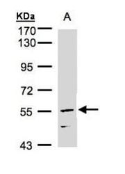 NBP1-31632 - NUF2 / CDCA1