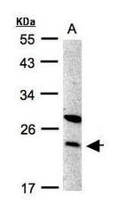 NBP1-31633 - SPC24 / SPBC24