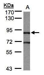 NBP1-31635 - Bcl-11B