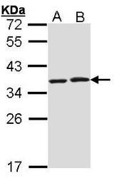 NBP1-31647 - HAX1