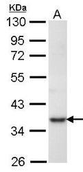 NBP1-31654 - PRPS1