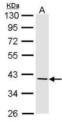 NBP1-31657 - Fibromodulin