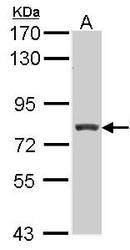 NBP1-31658 - RFX3