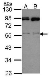 NBP1-31668 - MAPK9 / JNK2