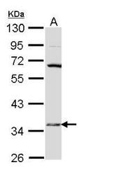 NBP1-31672 - 17-beta HSD6 / HSD17B6