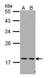 NBP1-31692 - PCNP